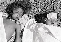 Bhopal gas tragedy in pics