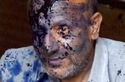 4 pictures of ink attack on J-K MLA Engineer Rashid