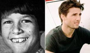 Tom Cruise then (L) and now