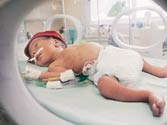 Preterm babies at higher risk of mental disorders
