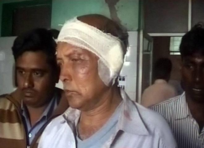 Panchayat worker's ear was chopped off