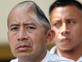 Half a skull lost in bouncer beating, man gets $58 million compensation