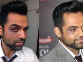 AAP floored by Abhay Deol's black eye protest