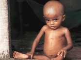 Over a third of Delhi children malnourished, reveals survey