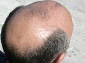 Good news for hairless men, psoriasis patients