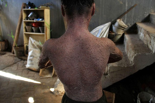'Snake Boy' sheds skin every 41 days (Photo: Daily Mail)