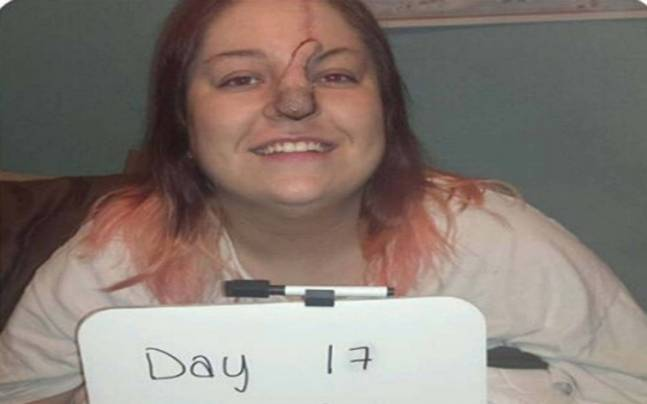Bree Towner, 28, from recovering 17 days after her nose operation