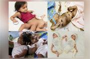 'Youngest' conjoined twins successfully separated: Some cases of successfully separated conjoined twins