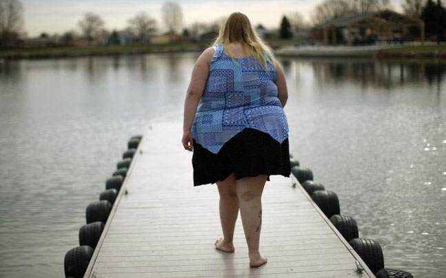 Weight loss surgery: 4 myths about bariatric surgery, busted