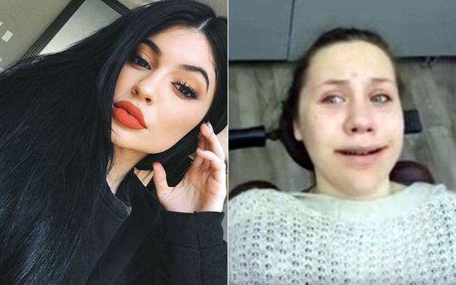 This young woman woke from surgery convinced she was Kylie Jenner. Picture courtesy: YouTube/Alisha Zamora