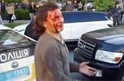 Vyacheslav Oliynykis bleeding from his head