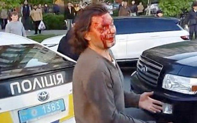 Vyacheslav Oliynykis bleeding from his head