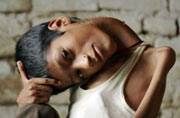 Woman from Liverpool helps crowdfund surgery of Indian boy with head tilted 180 degrees