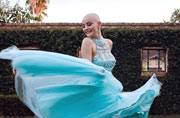 Cancer couldn't stop this teenager from modelling