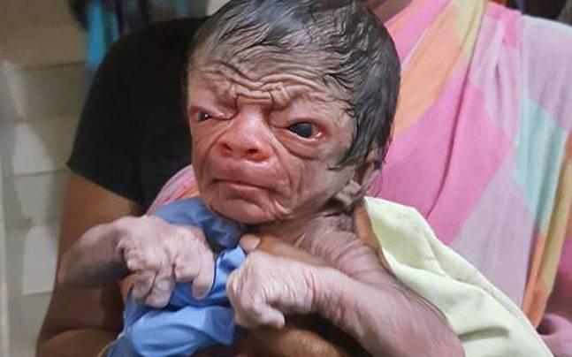 Baby boy with progeria
