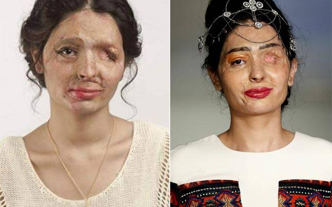 Reshma Qureshi is an inspiration today. Pictures courtesy: Instagram/@makelovenotscars, Reuters