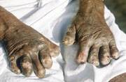 Central govt launches Leprosy eradication programme: All you should know about Leprosy
