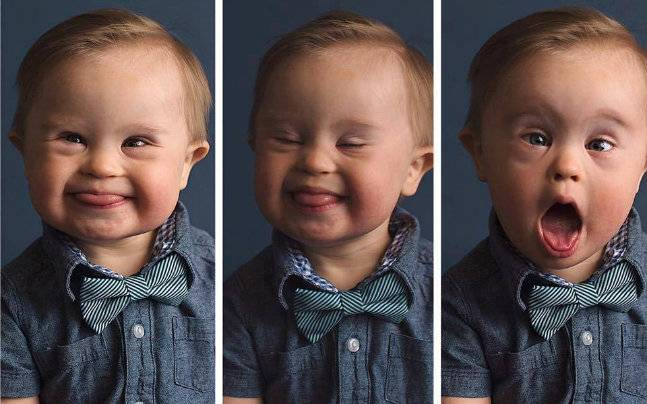 Photos of baby with Down's Syndrome goes viral after modelling
