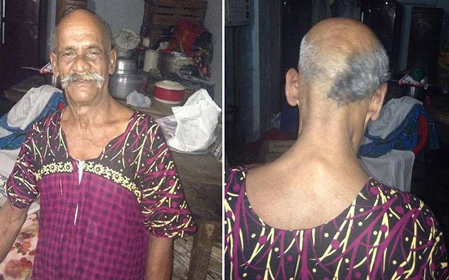 Tea vendor Yahiya who pledged not to grow hair on his half shaved head until PM Modi is voted out of pwer