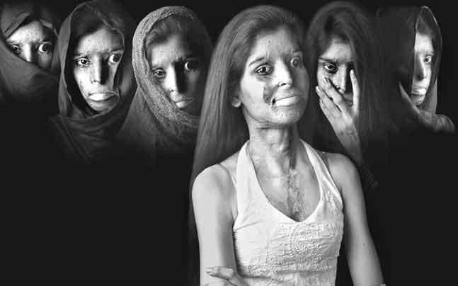 Acid attack victims