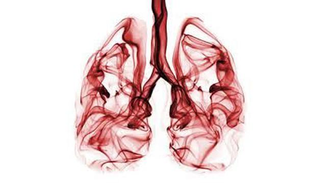 Babies exposed to thirdhand smoke have higher chances of suffering from lung cancer.