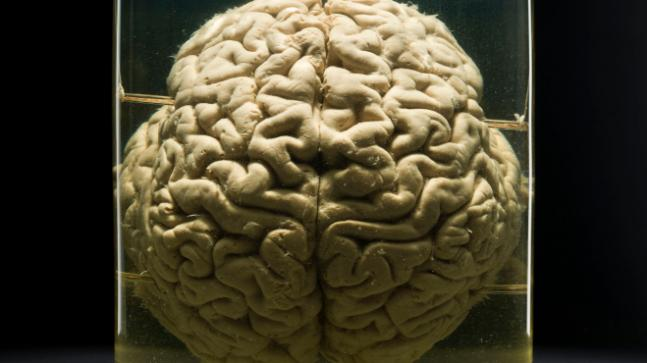 Discovery of new cell to determine why human brain is special