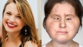 Katie Stubblefield is the youngest American to get a face transplant