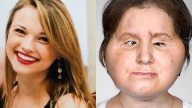 Suicide survivor gets second life with a new face  Watch viral video