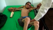 85,000 children starve to death in Yemen, some too weak to cry: All about the ongoing humanitarian crisis