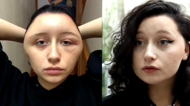 A French Woman Suffered An Allergic Reaction To Hair Dye