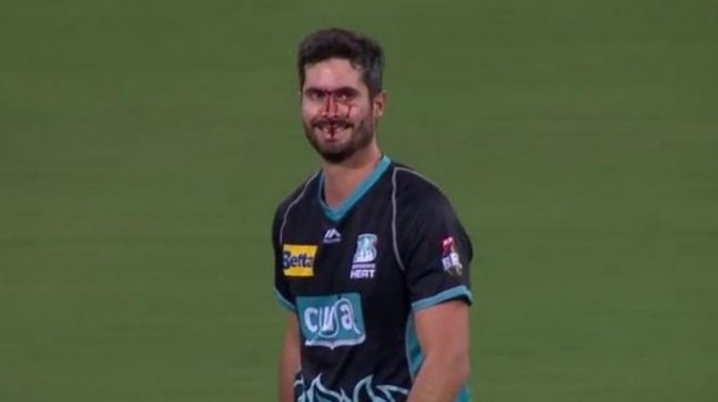 BBL 2019: Australia cricketer left with bloodied nose ...