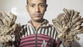 Bangladesh man suffering from tree man syndrome needs more surgeries
