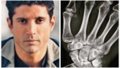 Farhan Akhar suffers hairline fracture on the sets of Toofan: My first legit boxing injury