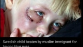 Fact Check: This European kid was not beaten up by a Muslim immigrant for having blue eyes