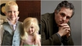 6-year-old boy gets 90 stitches after saving little sister from dog attack. Mark Ruffalo is proud