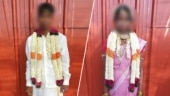 Husband set me on fire, threatened not to reveal: Tamil Nadu woman alleges torture over dowry