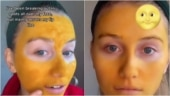 Scottish TikTok user applies turmeric face mask to treat acne. Here's what happened next