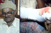 Targeted for honesty: Karnataka officer refuses to pay bribe, contractors chop off his hand