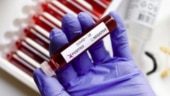 ICMR asks states not to use rapid testing kits for 2 days, says will review kits