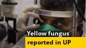 Now, yellow fungus case reported in Ghaziabad; Covid 'wonder drug' now available in India; more