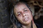 Opinion: Rohingya refugee crisis needs a balanced approach