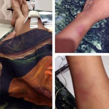 Nia Sharma: Nia Sharma hurt her knee and leg on the sets of Jamai Raja. Nia and other cast members of her show were playing a volleyball game, when she lost her balance.