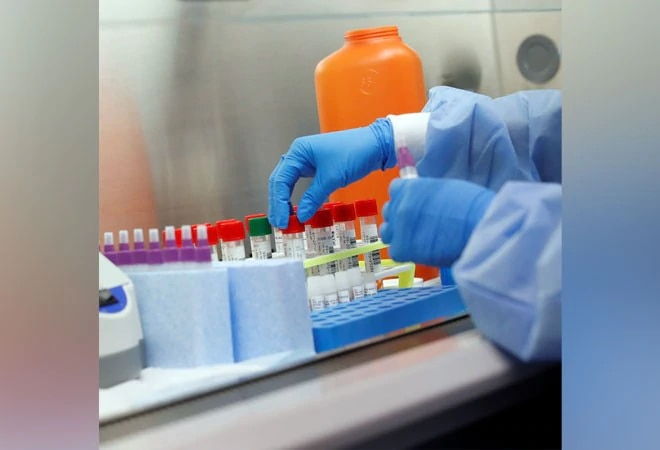 Coronavirus testing kits: Mylab signs deal with Serum, APG to ramp up production