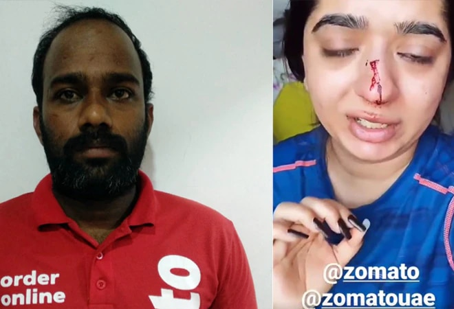 Zomato delivery man lodges FIR against woman in assault row
