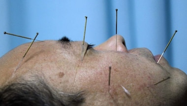 Treatment, Covid-19, Acupuncture