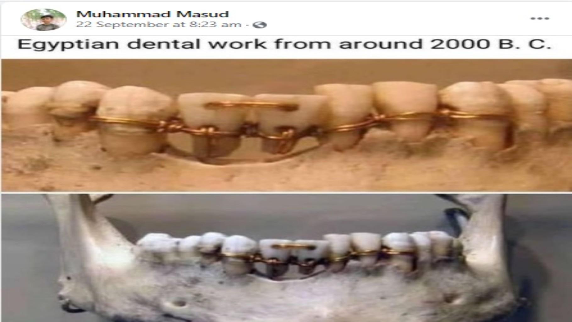 ফ্যাক্ট চেক- বাঁধানো দাঁতের এই ভাইরাল ছবিটি কি মিশরের?