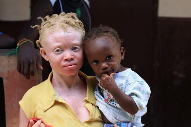 albino_042517113224.jpg