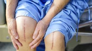 घुटनों के दर्द से परेशान मरीजों को कहीं मूर्ख तो नहीं बनाया जा रहा?