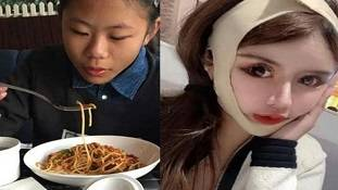 16 साल की लड़की ने 100 बार करवाई प्लास्टिक सर्जरी, सुंदरता की सनक या दबाव?