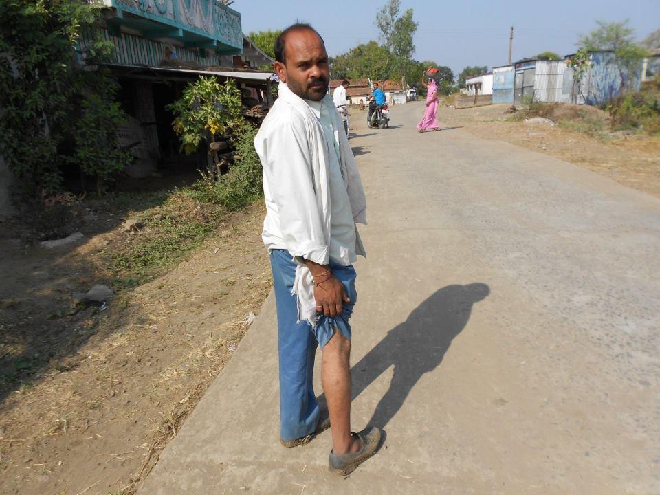 यह फोटो परमंडल गांव के रहने वाले एक युवा की है, जो 12 जनवरी की गोलीकांड में घायल हो गया था. तस्वीर Abhishek Ranjan Singh की फेसबुक प्रोफाइल से ली गई है.